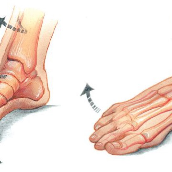 Phoenix Foot & Ankle Associates, P - Phoenix Foot & Ankle ... Ankle Pronation Surgery